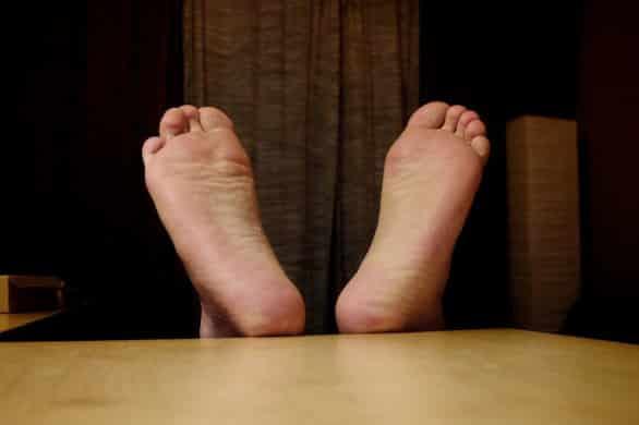 Calli e duroni ai piedi, i rimedi naturali più efficaci