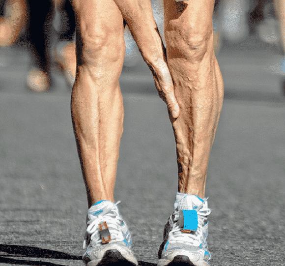 crampi gambe