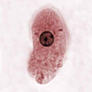 Placca batterica, cos'è e come curarla