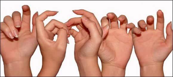 I sintomi dell'acrocianosi alle mani, le cause e la terapia