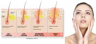 Le cause e i rimedi per i dolori allo stomaco in gravidanza