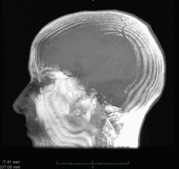 tonsille cerebellari