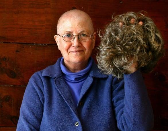 Chemioterapia, con una cuffia refrigerata stop alla perdita dei capelli