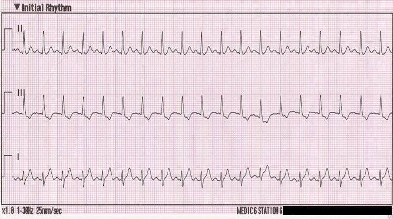 tachicardia sinusale