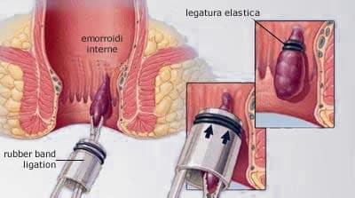 Emorroidi esterne: come dare sollievo a questo fastidio