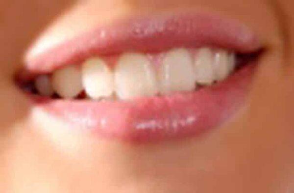 Mal di denti, rimedi naturali per alleviarlo