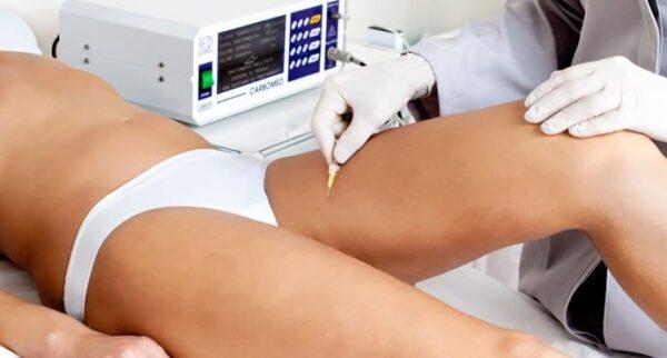 La carbossiterapia contro la cellulite