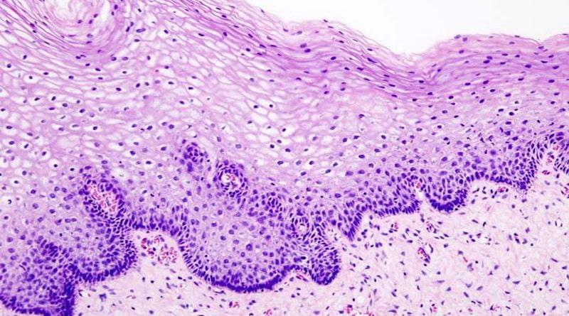 Condizioni fisiologiche e patologiche delle cellule epiteliali nell'urina