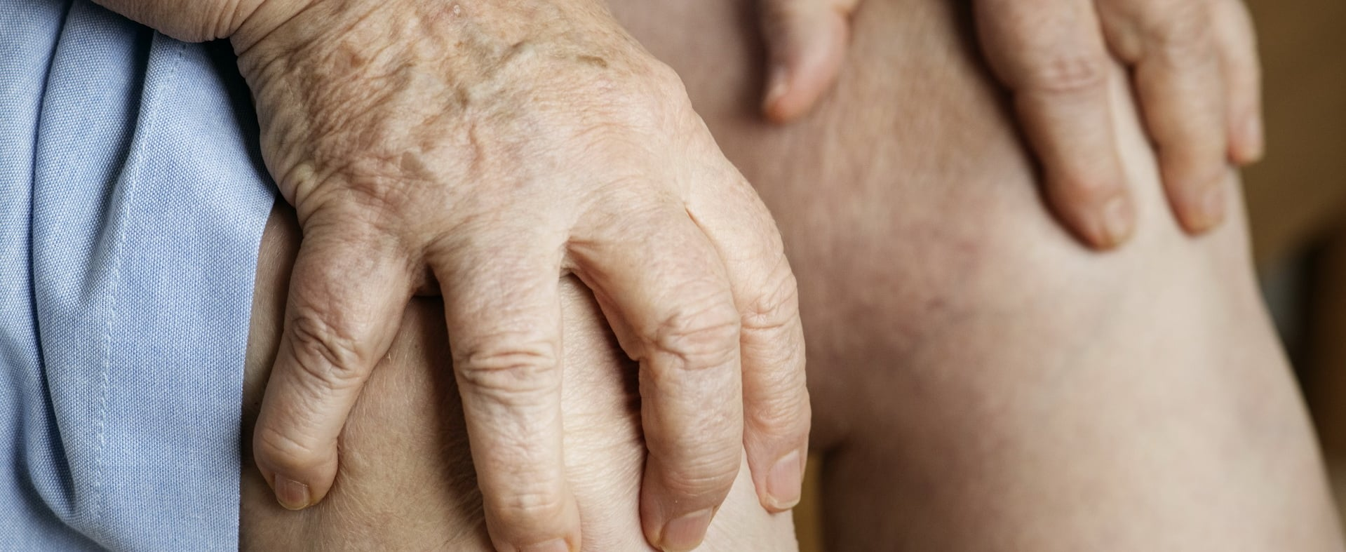 la gotta è uno dei problemi seri che la ritenzione idrica può causare